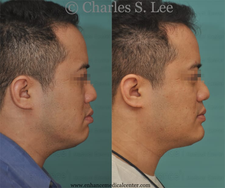 Jaw Angle Augmentation with Implants and Sliding Genioplasty - Dr ...