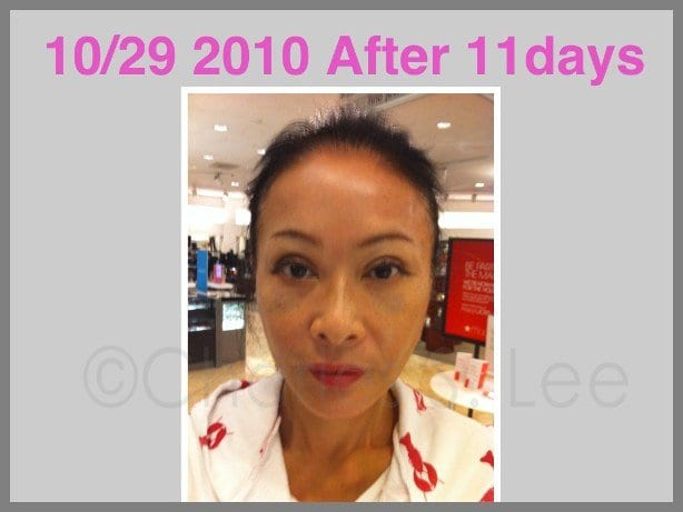 Face and Neck Lift with Upper and Lower Eyelid Surgery Actual Patient 13