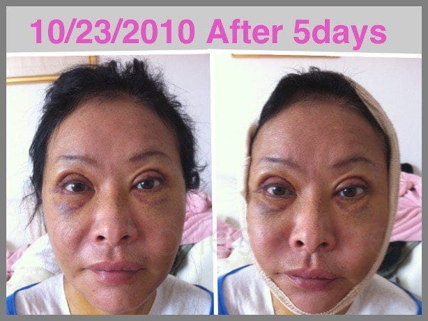 Face and Neck Lift with Upper and Lower Eyelid Surgery Actual Patient 7