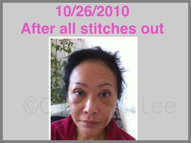 Face and Neck Lift with Upper and Lower Eyelid Surgery Actual Patient 10