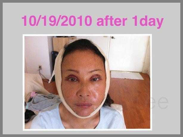 Face and Neck Lift with Upper and Lower Eyelid Surgery - Dr. Charles ...