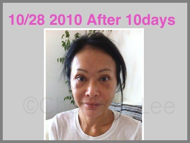 Face and Neck Lift with Upper and Lower Eyelid Surgery Actual Patient 12