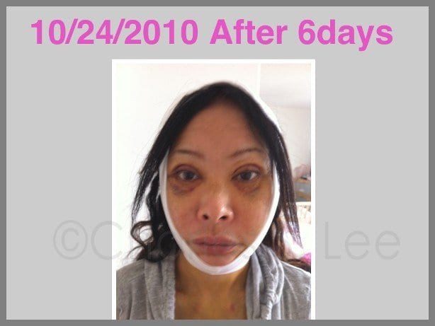 Face and Neck Lift with Upper and Lower Eyelid Surgery Actual Patient 8