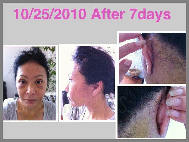Face and Neck Lift with Upper and Lower Eyelid Surgery Actual Patient 9