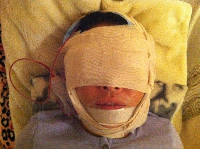 Face and Neck Lift with Upper and Lower Eyelid Surgery Actual Patient 3