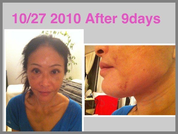 Face and Neck Lift with Upper and Lower Eyelid Surgery Actual Patient 11