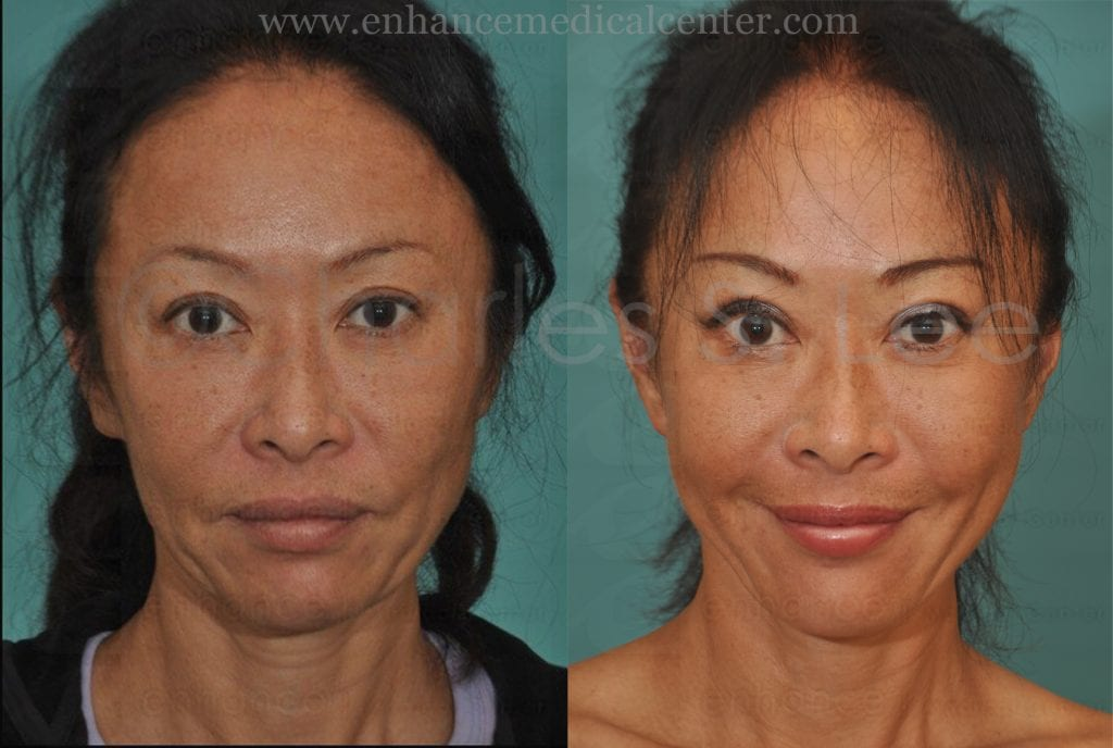 Face and Neck Lift with Upper and Lower Eyelid Surgery Actual Patient 1