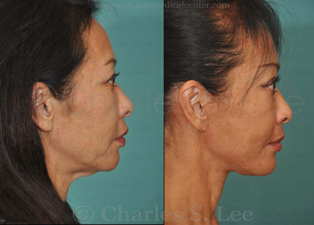 Face and Neck Lift with Upper and Lower Eyelid Surgery Actual Patient 2