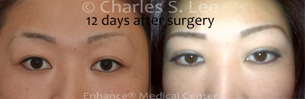 Incision Eyelid Surgery 12 days post operative