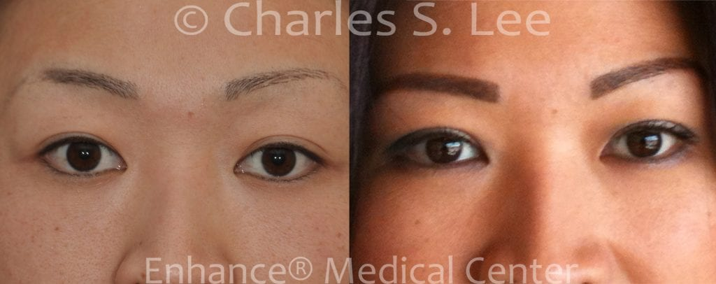 Incision Eyelid Surgery 1 month post operative