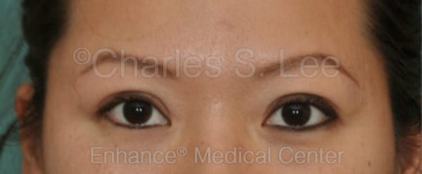 Asian Eyelid Surgery Patient After