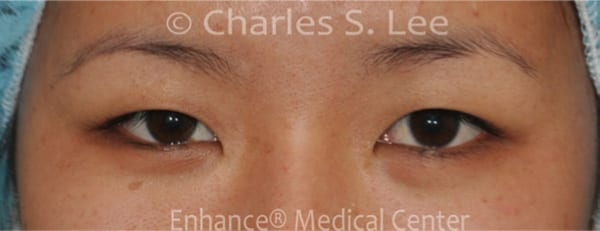 Asian Eyelid Surgery Patient Before 3