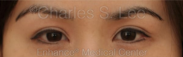 Asian Eyelid Surgery Patient Before 4