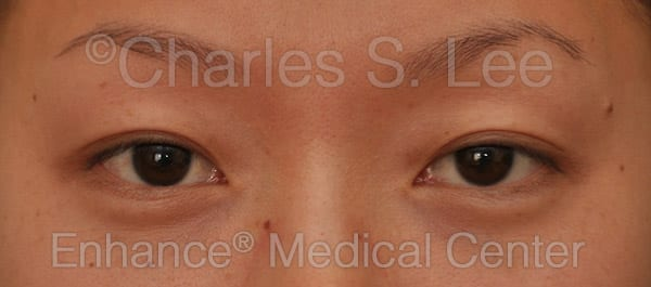 Asian Eyelid Surgery Patient Before 5