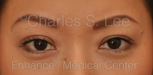 Asian Eyelid Surgery Patient After 6