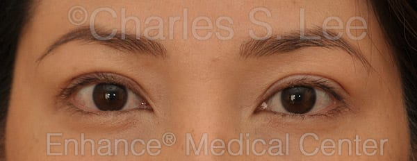 Asian Eyelid Surgery Patient After 7