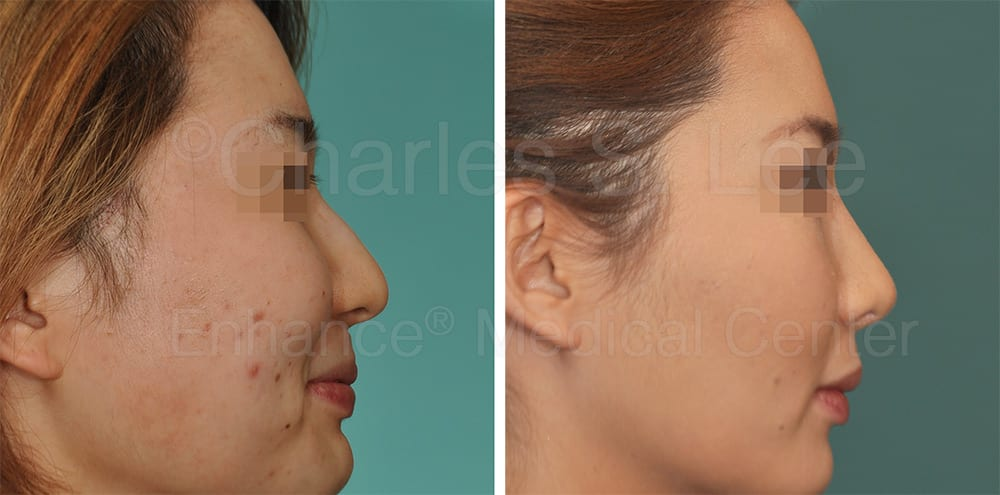 Asian Rhinoplasty Nose Surgery Genioplasty BZ