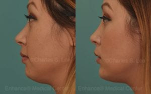 asian chin augmentation non surgical chin augmentation filler dr charles s lee chin surgery