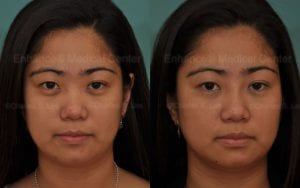 non-surgical asian rhinoplasty filler dr. charles s. lee