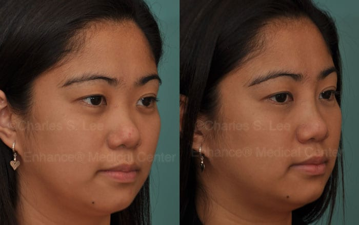 non-surgical asian rhinoplasty filler dr charles s lee