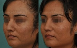 hispanic-rhinoplasty-hispanic rhinoplasty-nose job-dr charles lee-dr charles s lee-hump reduction-plastic surgery-cosmetic surgery-surgery