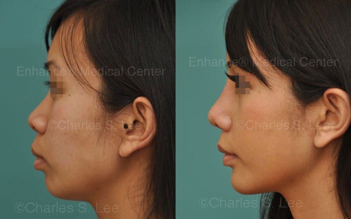 Rhinoplasty W Chin Augmentation By Dr Charles S Lee