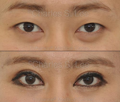 Asian eyelid surgery with removal of inner skin (inner epi) to show more eye and give a natural crease.