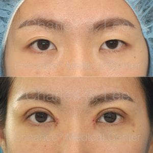This is a recovery picture 7 days after eyelid and inner corner repair, with correction of internal muscle weakness on the left eyelid (ptosis)