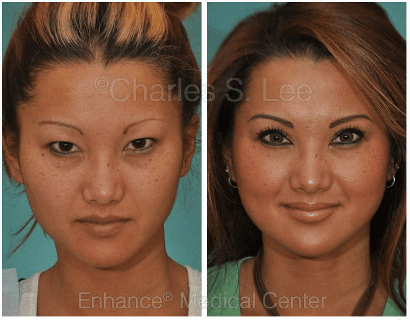 Obtaining symmetric results in Asian eyelid surgery | Enhance ...