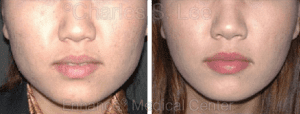 Non-Surgical Jaw Reduction Before and After Photos