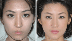 What to Do When You're Unhappy With Your Results From Nose Surgery