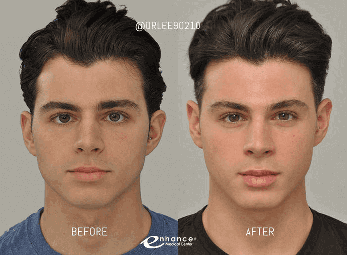 Male Cheek Reduction Before and After