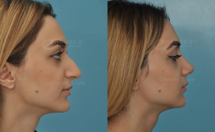 Half Asian Wide Nose - Asian - Porn Photos-8547
