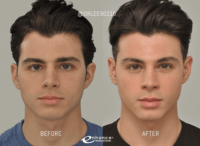 cheek_reduction_results_male-Blog- BA-IMG