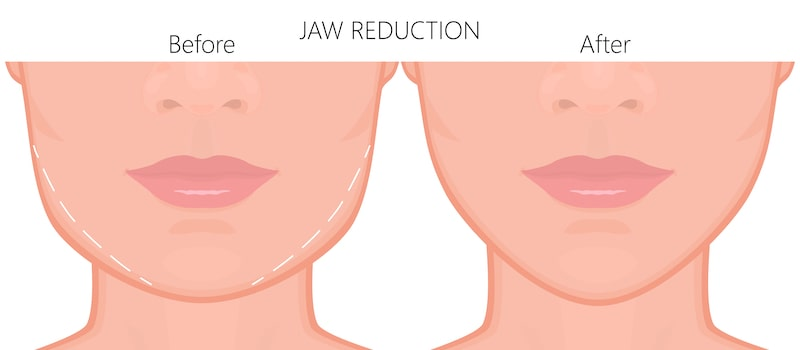 Illustration demonstrating what occurs before and after jawline reduction.